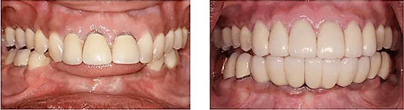 close-up before and after pictures of a patient's smile