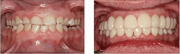a patient's smile close up before and after their makeover
