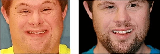 before and after picture of a patient