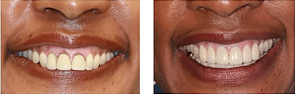 pictures of a patient's smile makeover before and after