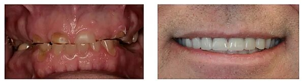 close up picture of a patient's smile before and after treatment
