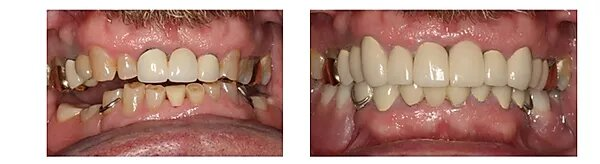 pictures of a patient's smile makeover