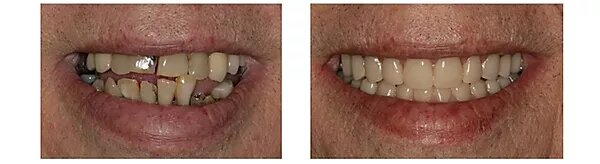 before and after pictures of a satisfied patient's smile