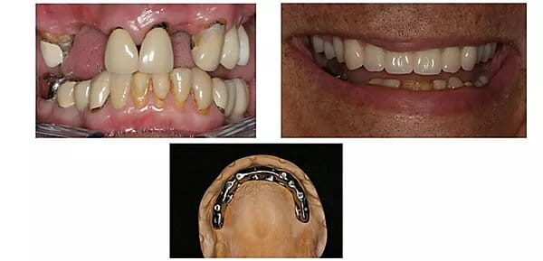 pictures of a patient's mouth before and after treatment