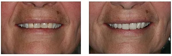 before and after close-up picture of a patient's smile