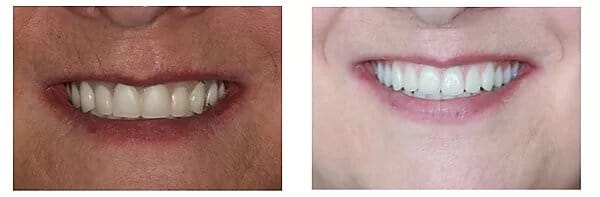 patient's smile close-up before treatment and after