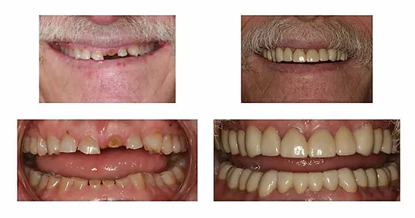 four pictures of a patient's smile makeover before and after treatment