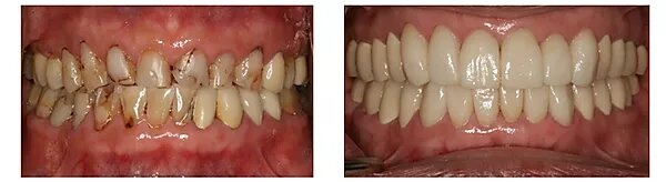 a patient's smile before and after their makeover