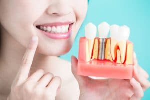 young woman smiling and holding up dental implant prosthetics